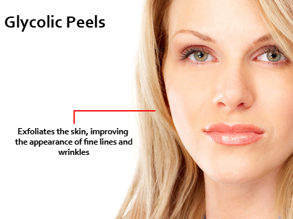glycolic peel what is it