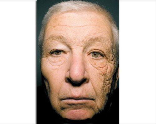 Sun-Damage = Premature Aging!