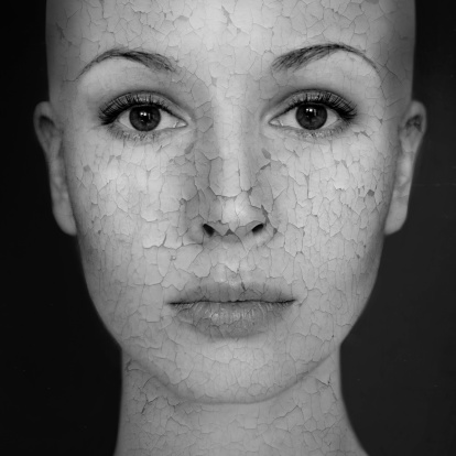 woman face with dry skin