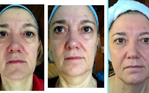 Amazing Facial Treatment Results!!