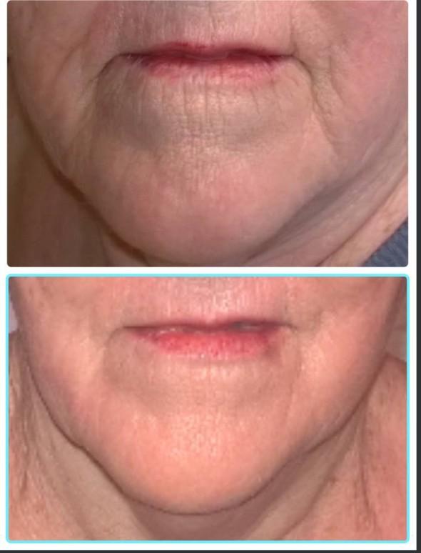 peptide facial treatments